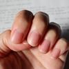 自分の爪がコンプレックス。そんな方と本気で向き合いたいと思う。