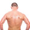 背中の毛の処理を知りたい男必見!2つの自己処理と1つの究極処理