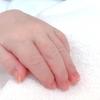 姑息手術*ファロー四徴症*BTシャント手術の説明を受けました。