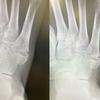 第五中足骨骨折から2ヶ月半