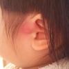耳瘻孔の腫れが抗生剤を飲んでもひかない