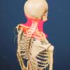 頸部のスクリーニング