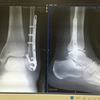 足首骨折・入院記録④ プレート細菌感染・前半
