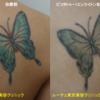 鮮やかな蝶のタトゥーが1回の治療で薄くなりました