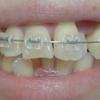 歯列矯正を開始してから174日目。