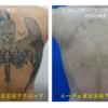 背中いっぱいの黒1色タトゥーの治療をしています。