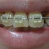 歯列矯正を開始してから127日目。