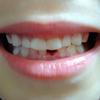 乳歯がとれたお祝いにシャトレーゼ プレミアム苺フェア