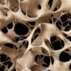 骨粗しょう症の原因と予防のための食事と運動とは?