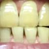 歯が白くなる歯磨きを使ってみる アパガード プレミオ プレミアムタイプ  13日目