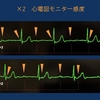 ECG-394:answer