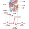 心電図ってなに?モニター心電図と12誘導心電図の違いとは?(ちょ~初級。誰でもわかるアウトラインを理解しよう)