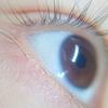 糖尿病で目が見えなくなった…?原因である網膜症についてのまとめ