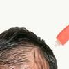 薄毛で頭皮が見えるのを隠す方法