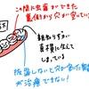 【虫歯④】親知らず抜歯(右下1本)