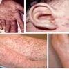 Bệnh giang mai ở nam giới và cách điều trị