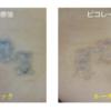 他院でタトゥーレーザーを受けられていた患者様の修正も行っています