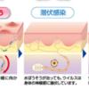 帯状疱疹へのアプローチ(メモ)