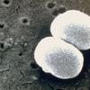 美肌菌を増やす