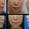 綺麗な横顔&スッキリしたフェイスラインになりました。アゴヒアルロン酸(2年持続型)注入症例写真です。