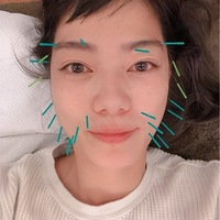 【マーガリン】人生初の!!ぎっくり腰気味からの美容鍼灸♡どうなるかな〜?