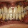 左右の歯茎の位置を揃えるための審美歯科治療