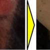 【永久脱毛への道】ヒゲ脱毛の効果あり!ゴリラに通ってヒゲ剃り頻度ダウン
