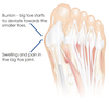 Does Over-Pronation Have To Have Surgical Procedures