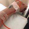 闘病日記⑰ 抗がん剤注射4回目