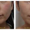 顔の赤味(あから顔)の治療です。 エクセルVにてエクセルコンビネーション治療を行いました。