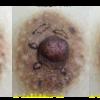 乳輪のモントゴメリー腺切除を切除しました(ボコボコしているところを平らにしました)。