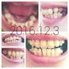 歯科矯正:あれから2ヶ月