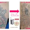 二の腕タトゥー4色マルチカラー 1度の照射でカラーはかなり消えました。