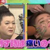 マツコ会議で美容鍼が紹介されました!