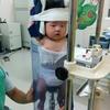 赤ちゃんの入院:口唇裂はきれいになおる