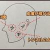 皮膚の瘢痕治療・レーザー治療で、関西で最も有名な形成外科に行ってきた
