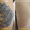 二の腕の黒一色タトゥーにピコレーザーを当てています