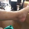 その後の母の足。そういえば気になっていました。