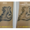 腕の黒タトゥーの1回照射後