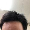 アラサーで、前髪が後退している。