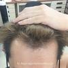 順調に毛がふえてる♪【11か月目】ミノキシジルとプロペシア薬の経過 AGAハゲ・頭皮画像