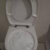 【尿に泡が立つの大丈夫??】
