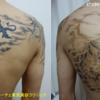 背中一面の黒と赤2色タトゥーが薄くなります