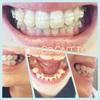 歯科矯正:月一検診へ