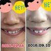 No.16 歯の並びが大きく動いた1ヶ月でした‼︎感動⭐️