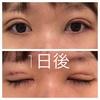 美容整形で瞼を二重にした話③埋没法3点留、1ヶ月後までの経過。