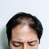 【ハゲ予備軍絶望】AGA(薄毛)は遺伝する?遺伝した場合の対策はある?