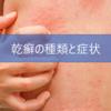 乾癬の「種類」と「症状」を理解して早期対策をしよう