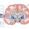 震えの外科的治療 脳深部刺激療法(DBS)とは
