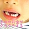 子供の前歯がグラグラしてきた場合は?
